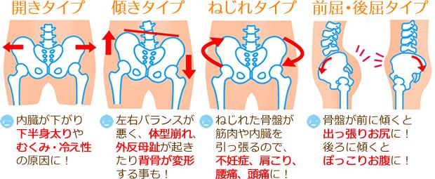 国分寺の整体【 口コミNo.1 】のぶ整体院の骨盤を整える整体を受けるとこんな変化があります。